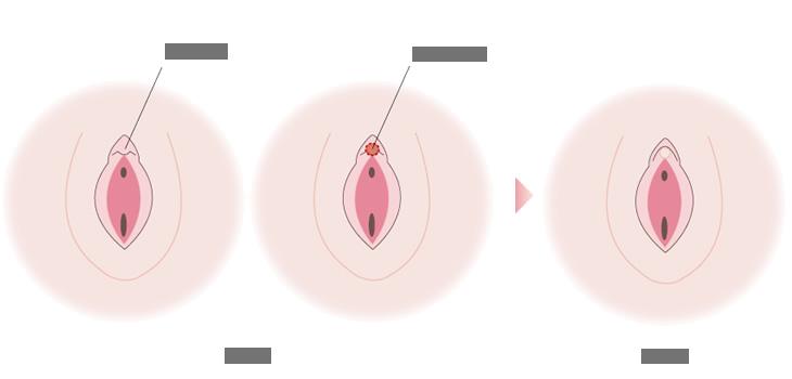 包茎 クリトリス