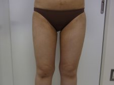 脂肪吸引 大腿全周臀部膝 前面より施術後