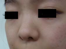 鼻尖形成術 左斜めより施術前
