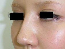 隆鼻術施術後
