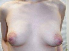 乳房吊り上げ術 乳輪縮小術施術前