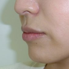 唇ヒアルロン酸注入施術後