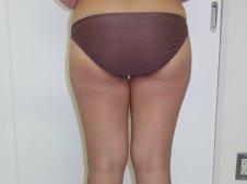 脂肪吸引 大腿全周臀部膝 後面より施術前