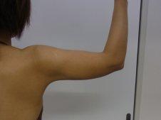 脂肪吸引 二の腕施術後