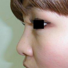 鼻のヒアルロン酸注入施術後