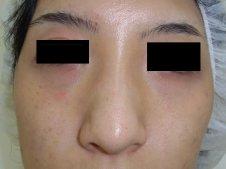 鼻尖形成術 正面より施術前