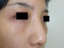 鼻尖形成術 右斜めより施術前