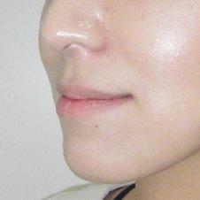 唇ヒアルロン酸注入施術前