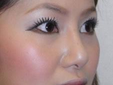 目チカラアップ術、目頭切開、目尻切開、隆鼻術、鼻尖形成術、鼻翼形成術施術後