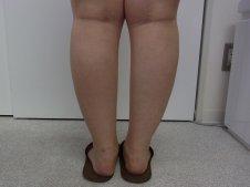 脂肪吸引 下腿足首 後面より施術前