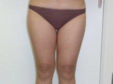 脂肪吸引 大腿全周臀部膝 正面より施術前