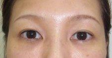 目の下の脂肪取り、目の下のクマ脂肪注入施術後