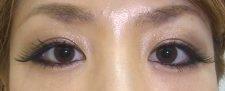 涙袋形成 ヒアルロン酸注射 正面より施術後