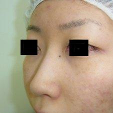 隆鼻術(鼻プロテーゼ挿入)施術前