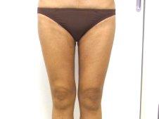脂肪吸引 大腿全周臀部膝 正面より施術後