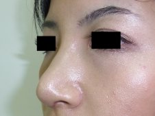 鼻尖形成術 左斜めより施術後