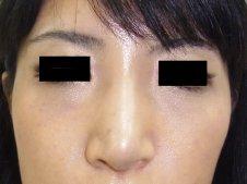 鼻尖形成術 正面より施術後