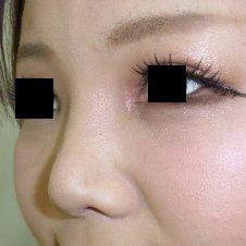 隆鼻術、鼻尖形成術施術後