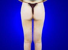 脂肪吸引 大腿全周臀部膝 後面より施術後