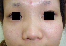隆鼻術、鼻尖形成術施術前