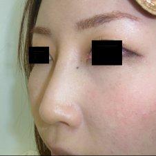 隆鼻術(鼻プロテーゼ挿入)施術後