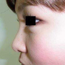 鼻のヒアルロン酸注入施術前