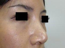 鼻尖形成術 右斜めより施術後