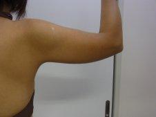 脂肪吸引 二の腕施術前
