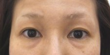 目の下の脂肪取り、目の下のクマ脂肪注入施術前