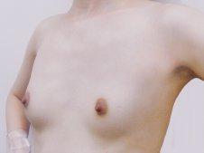 脂肪豊胸施術前