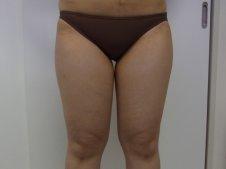 脂肪吸引 大腿全周臀部膝 前面より施術前