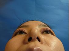 鼻尖形成術(鼻先を細くする施術)施術後