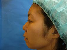 隆鼻術施術前